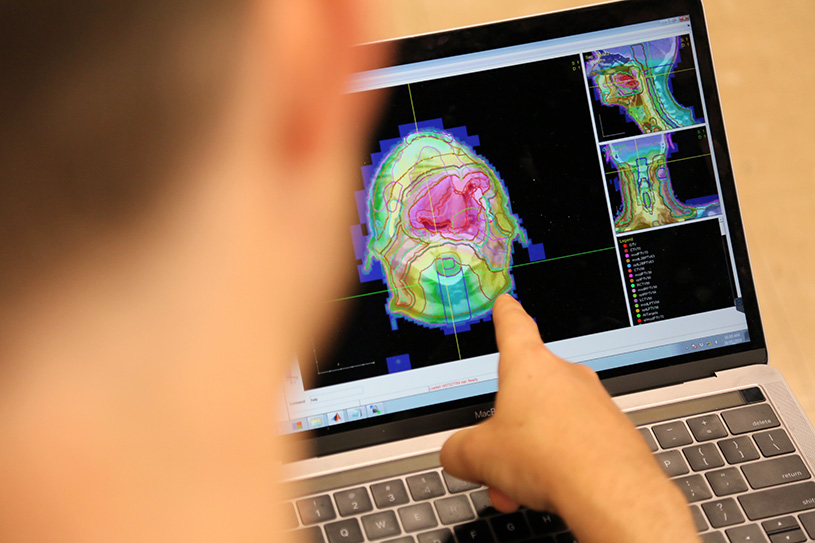 Smarter cancer treatment: AI tool automates radiation therapy planning